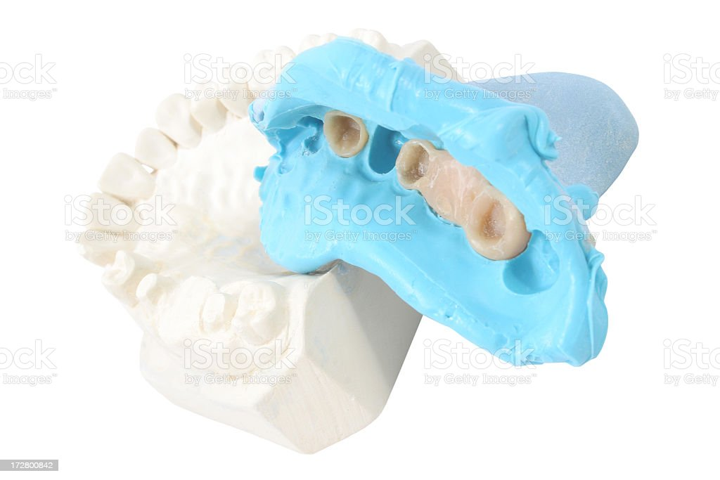 Dental bridge and canine crown stock photo