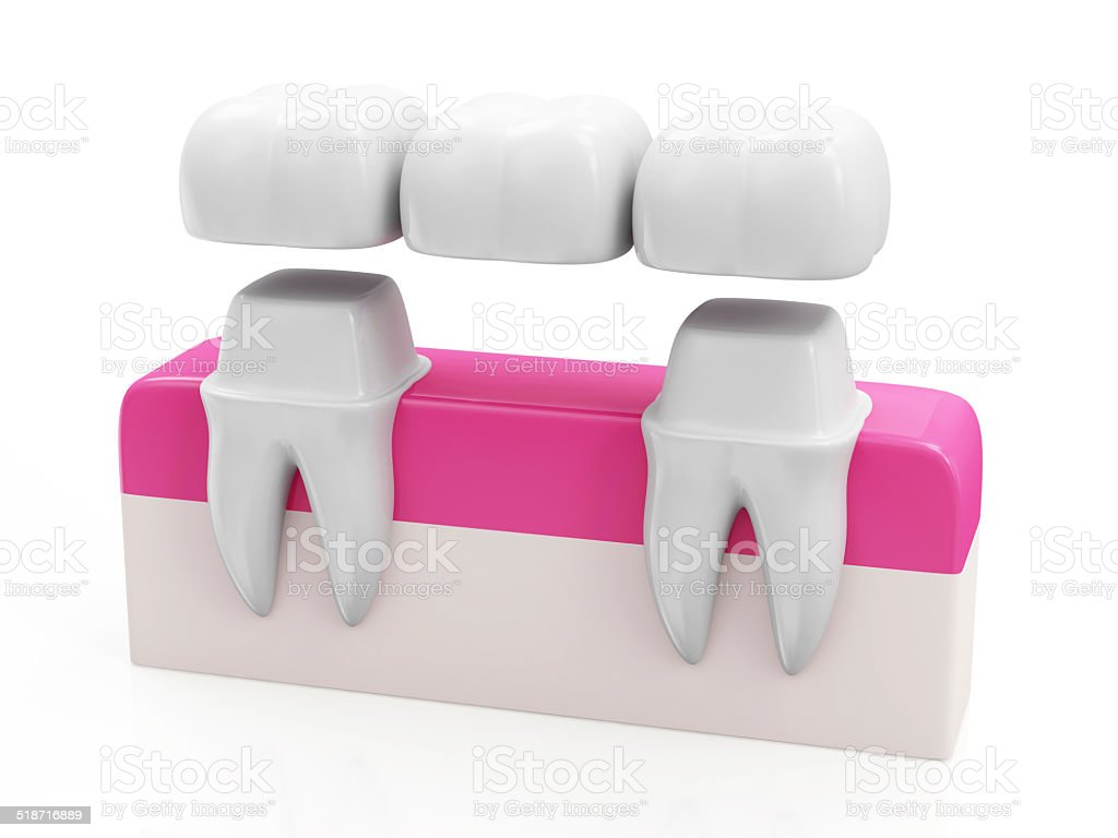 Dental Bridge Concept. Dental Crown on a Tooth stock photo
