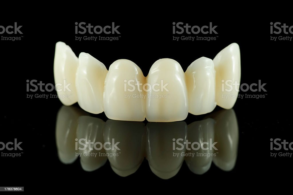 Dental bridge on black background reflecting off surface stock photo