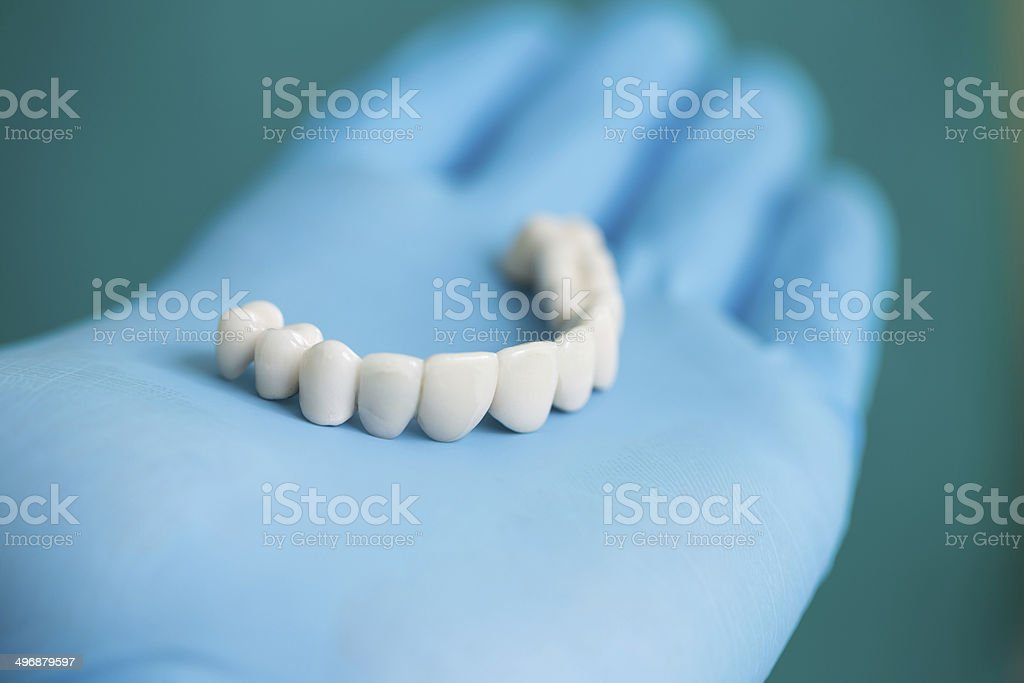 Dental Bridge stock photo