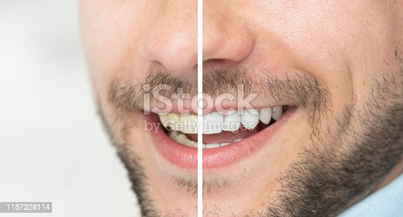 Dental care and whitening teeth. Compare smile before and after bleaching.