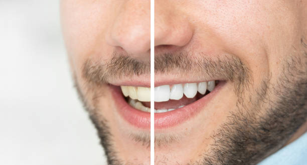 Dental care and whitening teeth compare stock photo