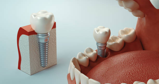 Dental care Dental care, 3d rendering implant stock pictures, royalty-free photos & images