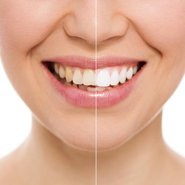 52,279 Teeth Whitening Stock Photos, Pictures & Royalty-Free Images - iStock