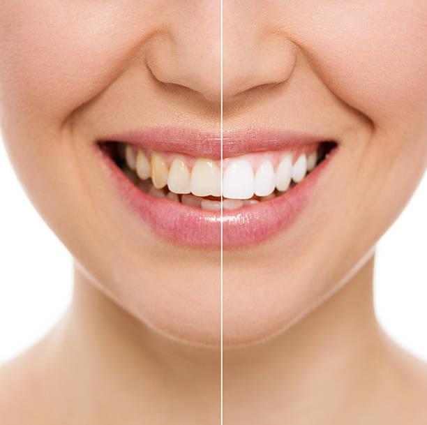 dental care woman - tanden bleken stockfoto's en -beelden