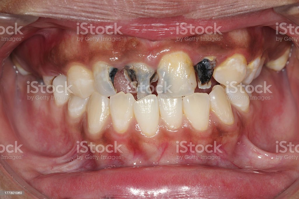 Dental caries. stock photo