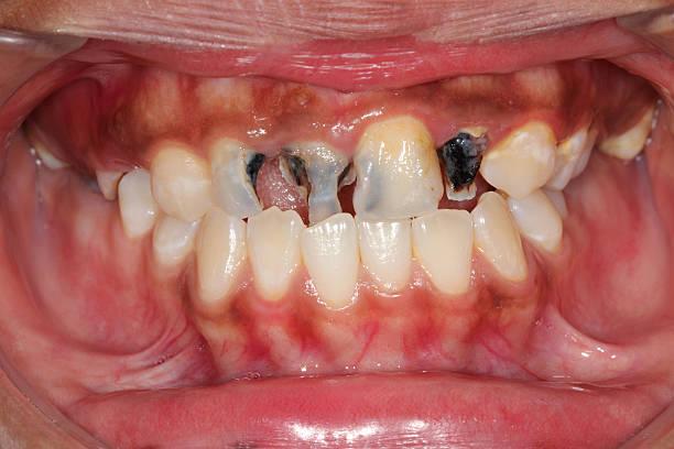 Dental caries. stock photo