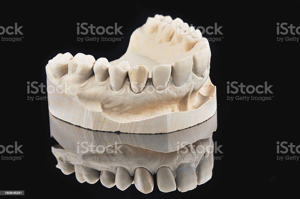 Dental Cast Model stock photo