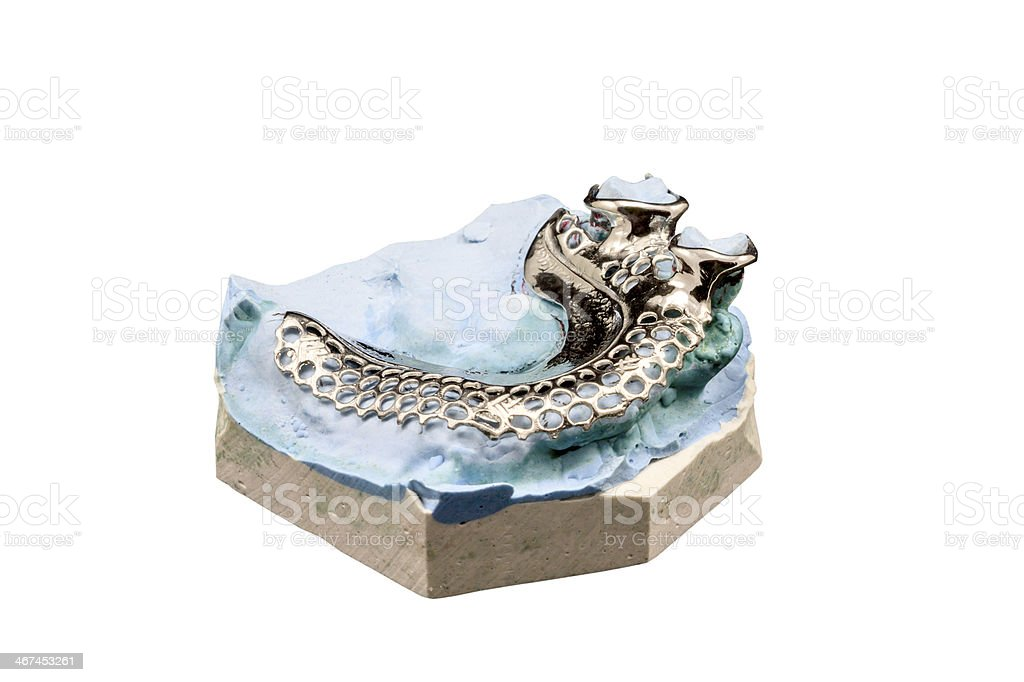 Dental cast moulds on a white background stock photo