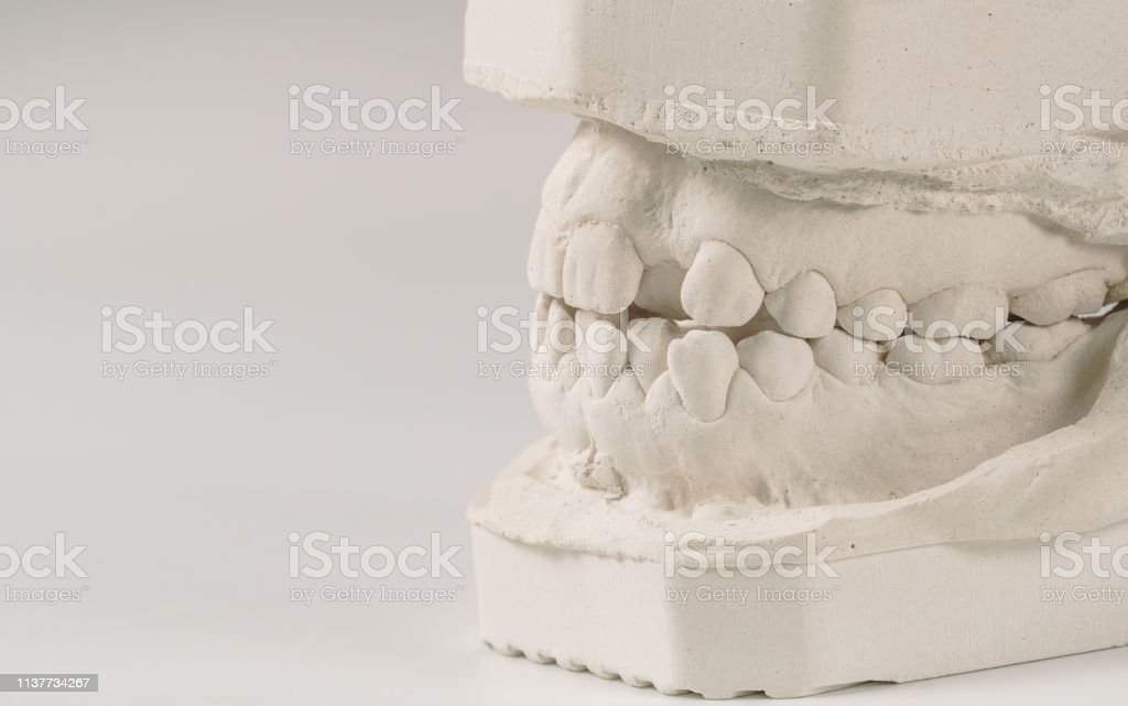 Dental Casting Gypsum Model Of Human Jaws Crooked Teeth And