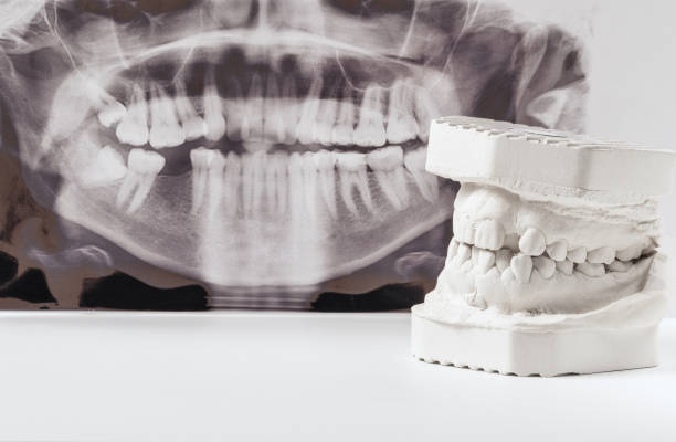 Dental casting gypsum model of human jaws with panoramic dental x-ray . Crooked teeth and distal bite. Shots were made before treatment with braces.