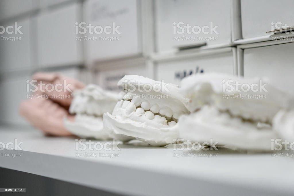 Plâtre de moulage dentaires modèle en plâtre des mâchoires humaines dentaires prothétiques laboratoire coups techniques - Photo