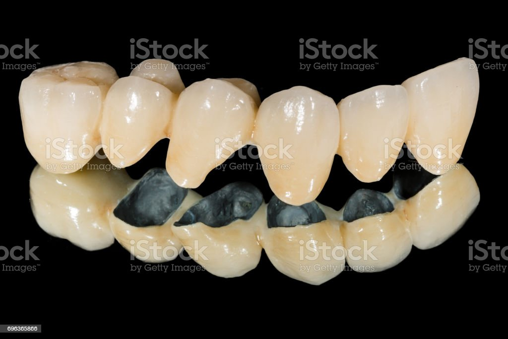 Pont de céramique dentaire - Photo