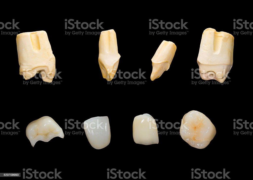 Dental ceramic crowns stock photo