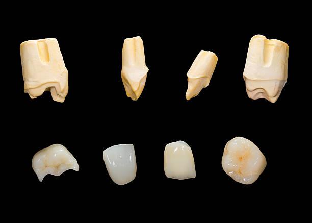 Dental Kronen und Keramik – Foto