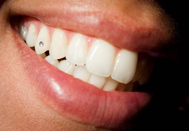 Dental circon – Foto