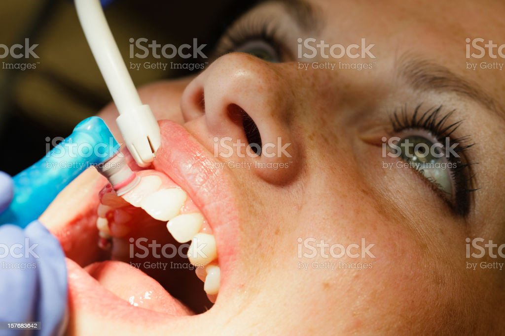Dental Cleaning Close-up royalty-free stock photo