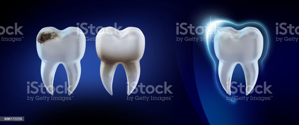 Dental concept. 3d render illustration clean and dirty tooth isolated on blue, clearing tooth process. Teeth Whitening. Oral Care, teeth restoration. stock photo