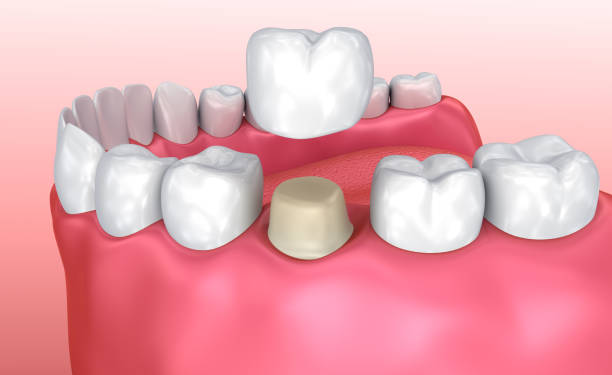 Dental crown installationsprocessen, medicinskt korrekt 3d illustration bildbanksfoto