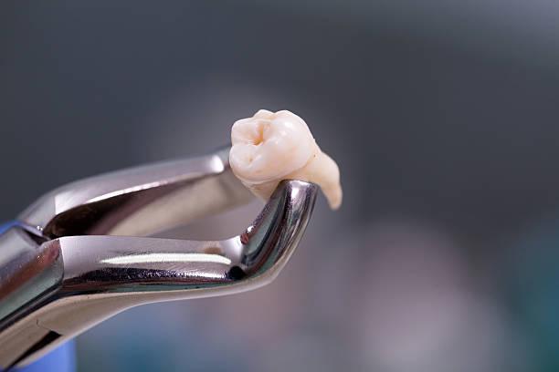 Dental equipment,tooth extraction ストックフォト
