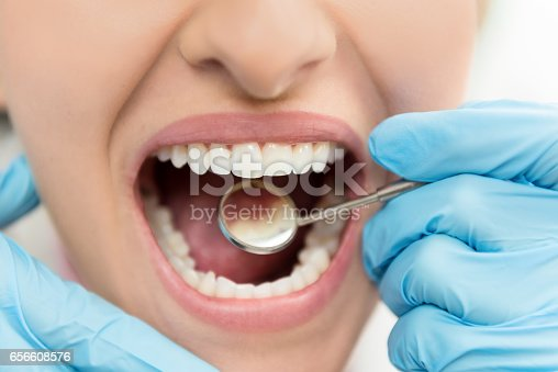 Horizontal color close-up image of young woman having dental exam.