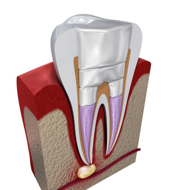tandvullingen procedure diagramm. 3d illustratie - dentine stockfoto's en -beelden