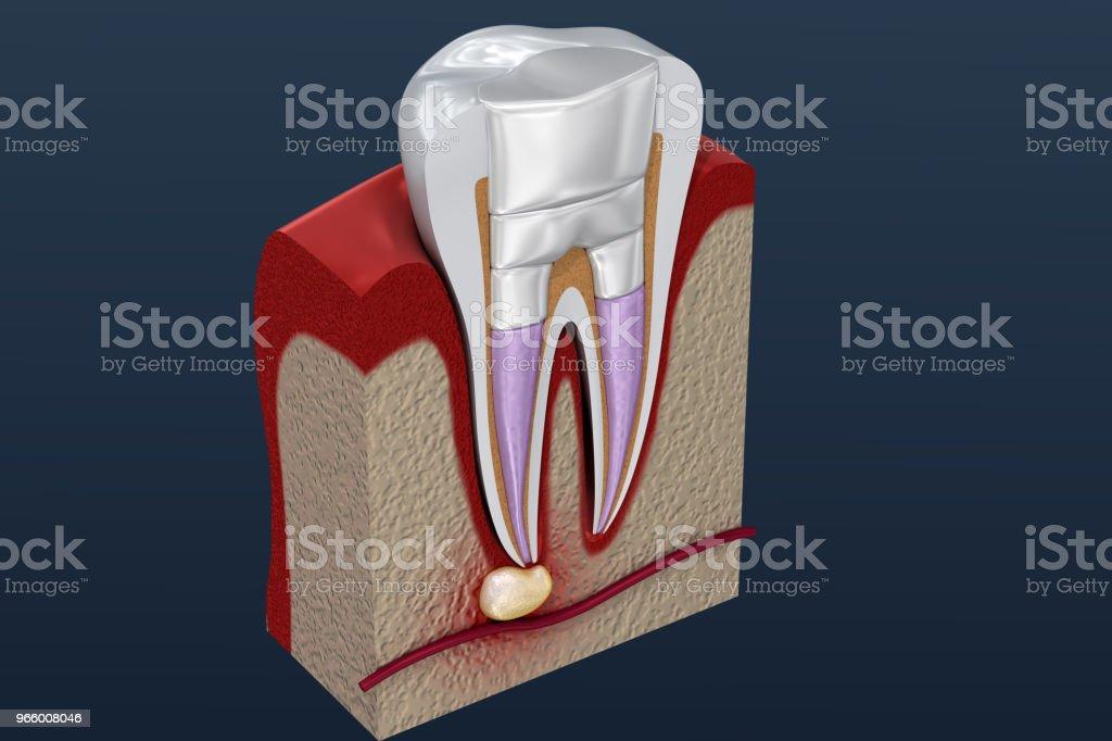 Zahnfüllungen Verfahren Diagramm. 3D illustration - Lizenzfrei Anatomie Stock-Foto