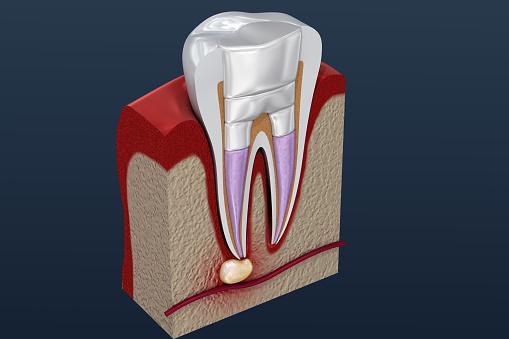 Zahnfüllungen Verfahren Diagramm 3d Illustration Stockfoto und mehr Bilder von Anatomie