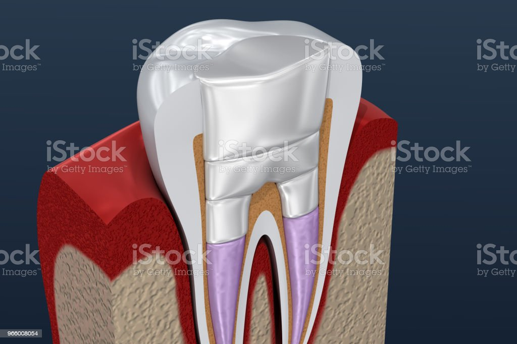 Dental fillings procedure diagramm . 3D illustration - Royalty-free Alloy Stock Photo