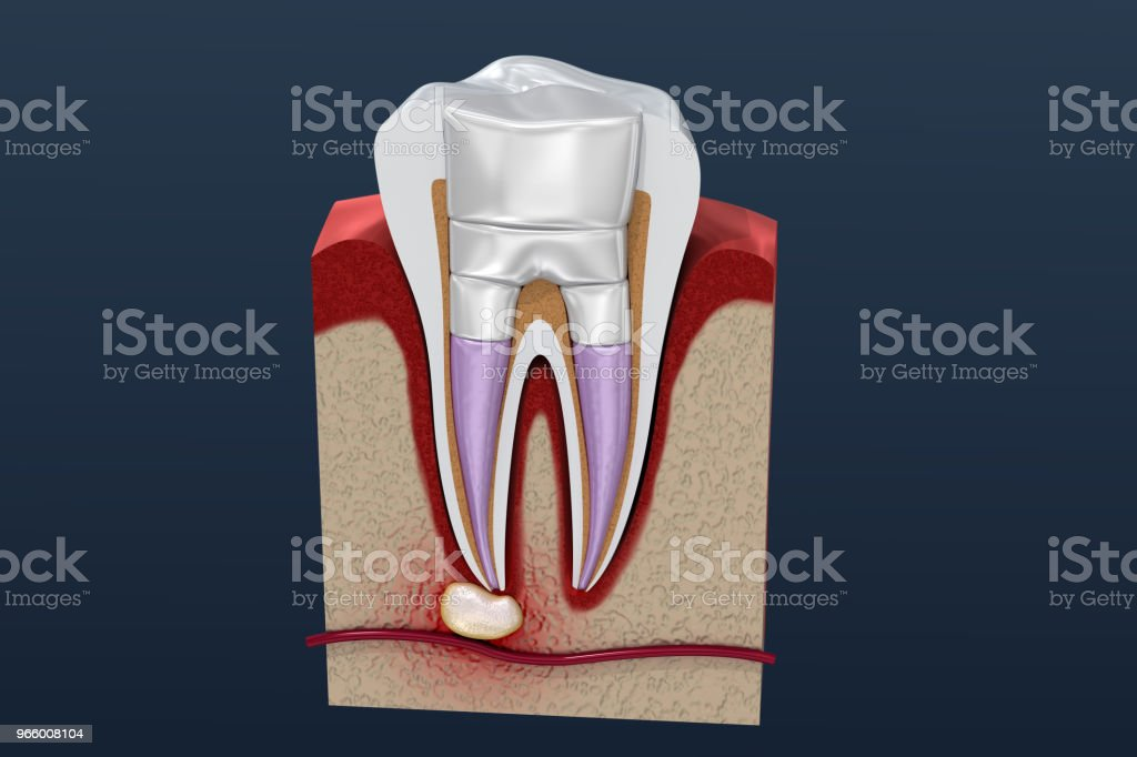 Dental fillings procedure diagramm . 3D illustration - Royalty-free Alloy Stock Photo