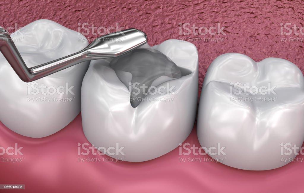 Dental Fissur Füllungen, medizinisch genaue 3D-Illustration - Lizenzfrei Abszess Stock-Foto