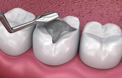 Dental Fissur Füllungen Medizinisch Genaue 3dillustration Stockfoto und mehr Bilder von Abszess