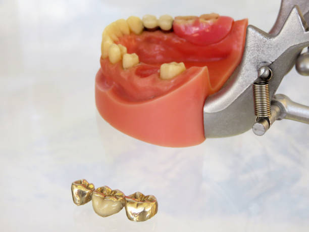 dental - gold teeth - gold tooth stock photos and pictures