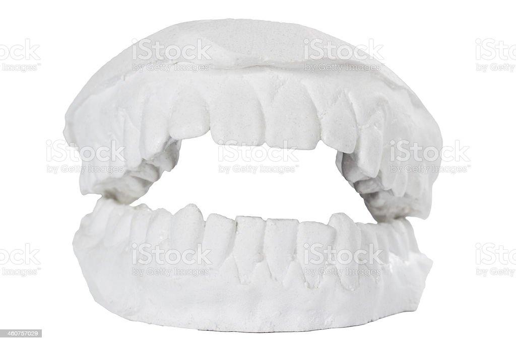 Fotografía de Molde Dental Yeso Modelo De Dientes De Yeso y más ...
