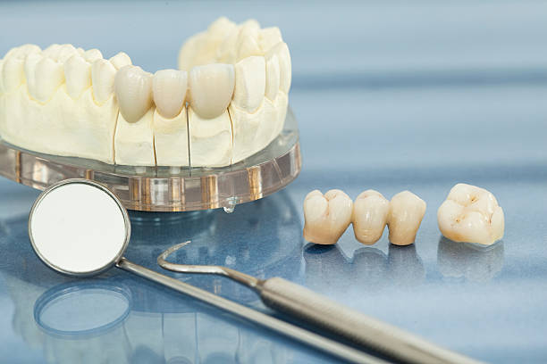 Dental health care Dental health care tooth crown stock pictures, royalty-free photos & images