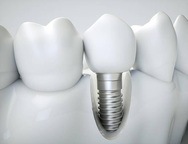 dental implant - 3d rendering - inlay zahn stock-fotos und bilder
