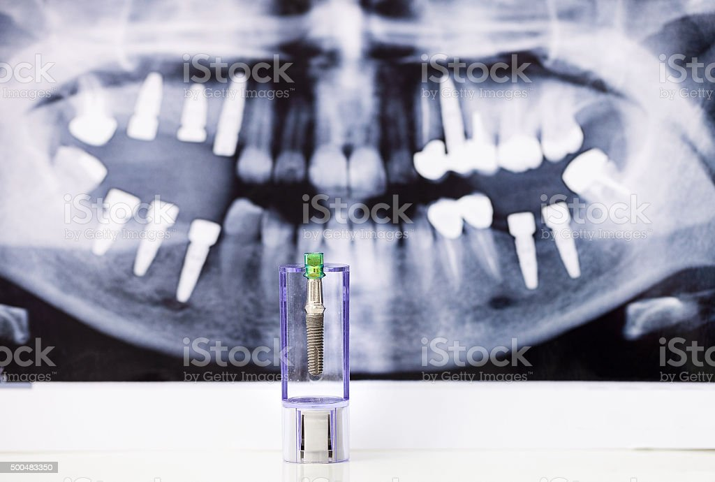 Dental Implant and x-ray picture as background stock photo