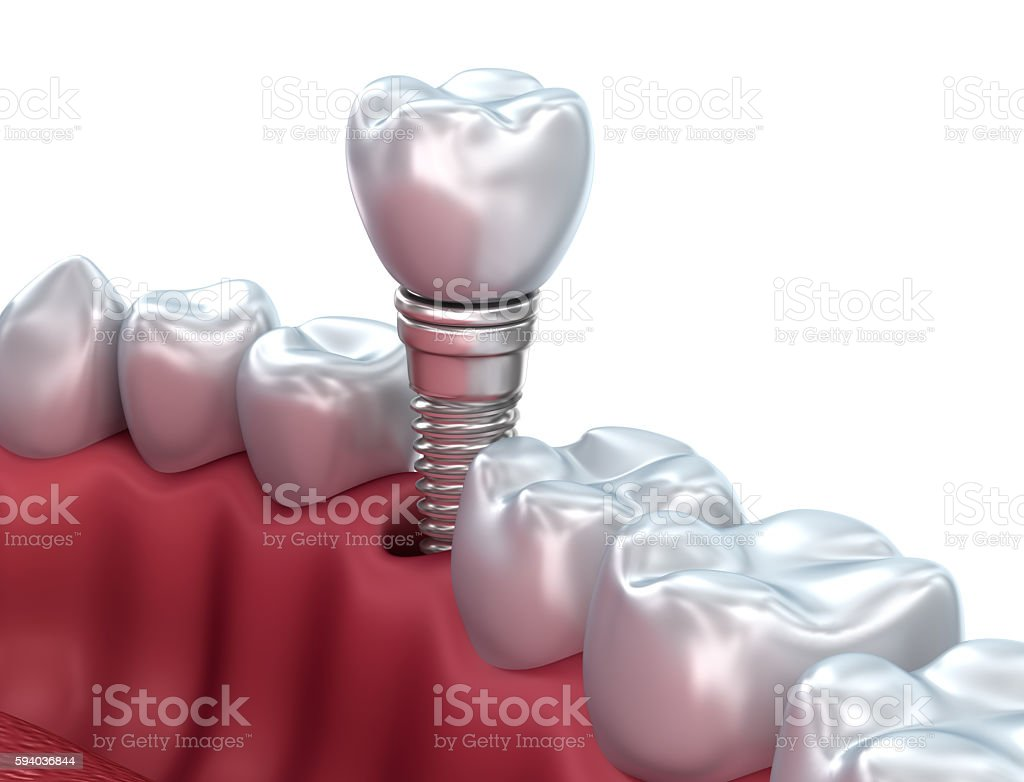Dental implant, Medically accurate 3D illustration stock photo