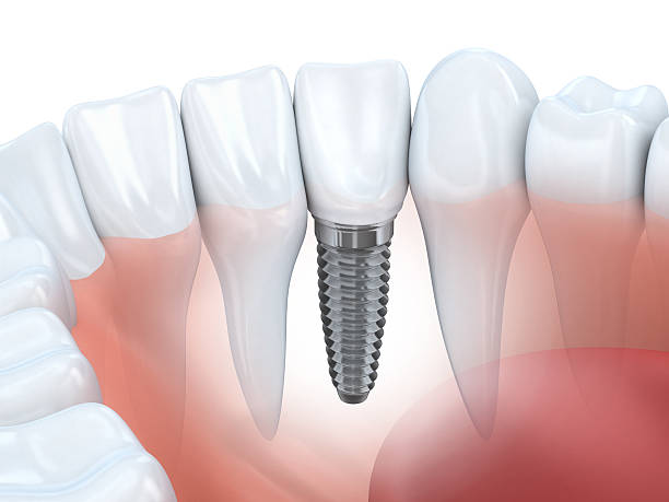 dental implant - dental implants stock photos and pictures