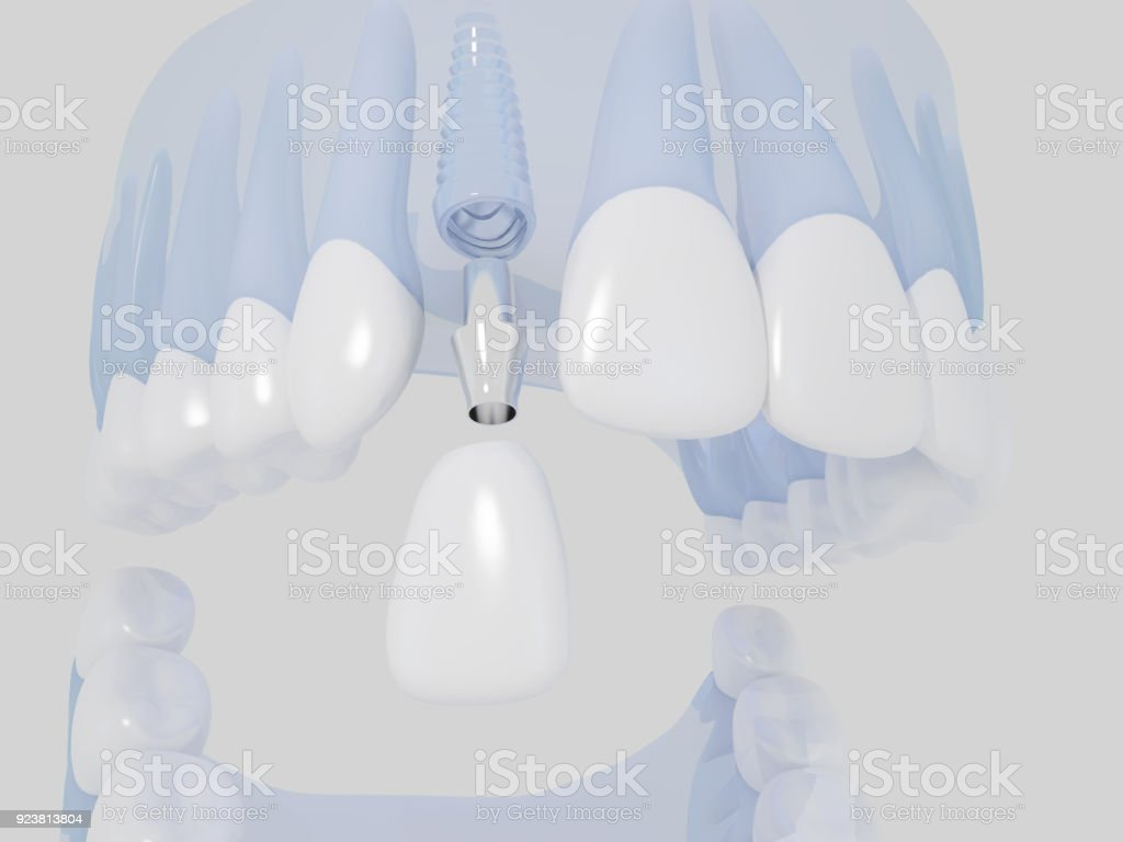 Implante Dental - foto de stock