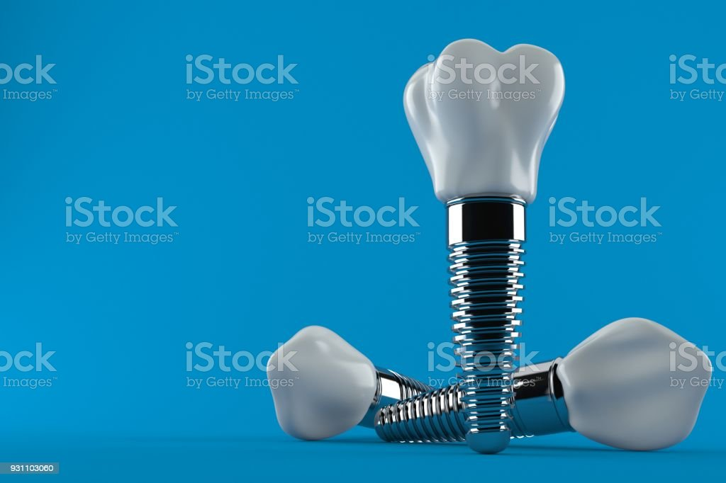 Dental implant - Royalty-free Boş Stok görsel