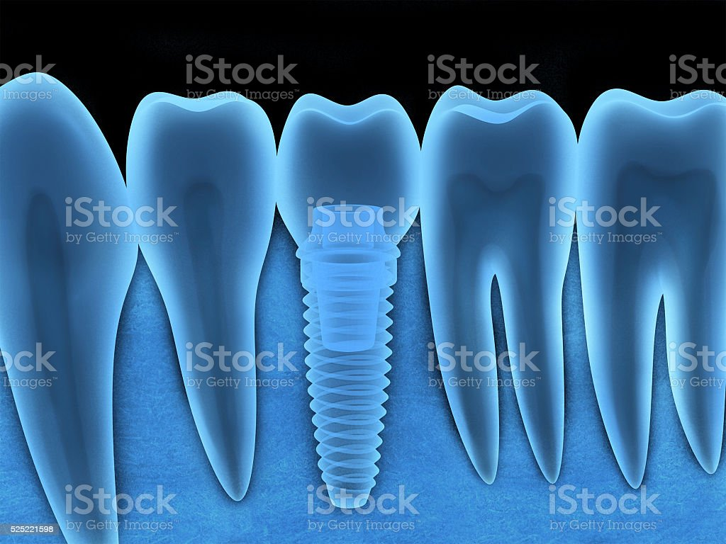 Dental implant x-ray stock photo