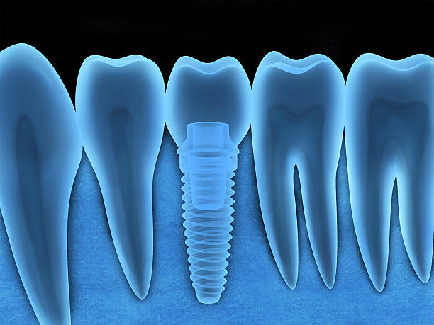 dental implant x-ray - dental implants stock photos and pictures