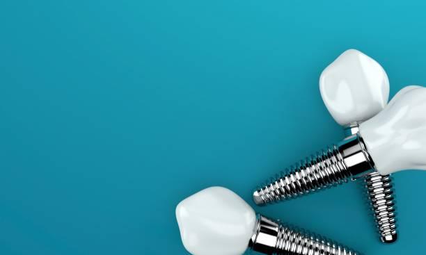 Dental implants on blue background Dental implants on blue background implant stock pictures, royalty-free photos & images