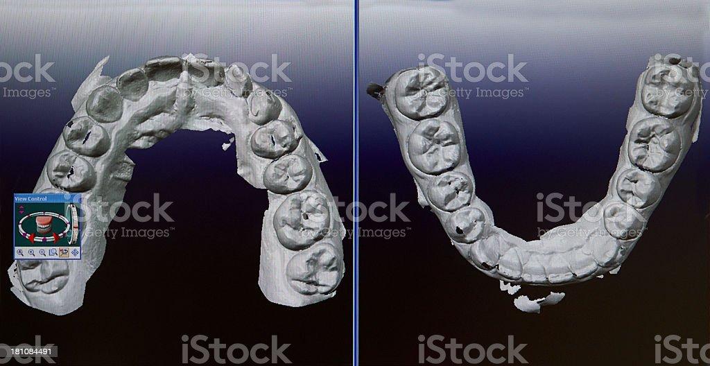 Dental Impressions royalty-free stock photo