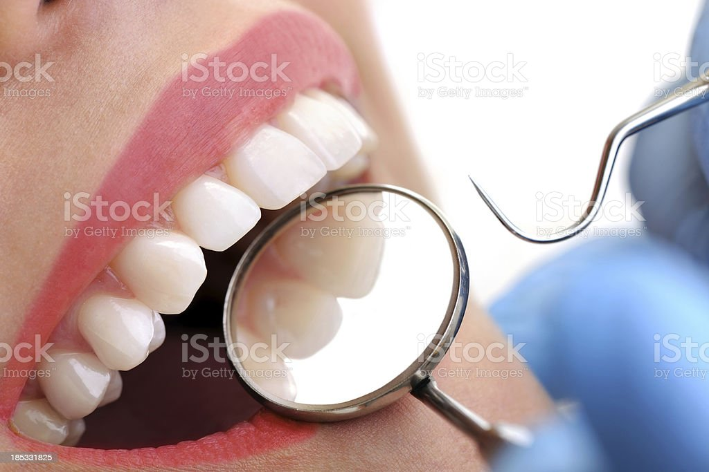Dental Inspection royalty-free stock photo