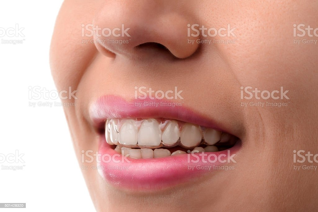 Dental medical care. Invisible braces stock photo