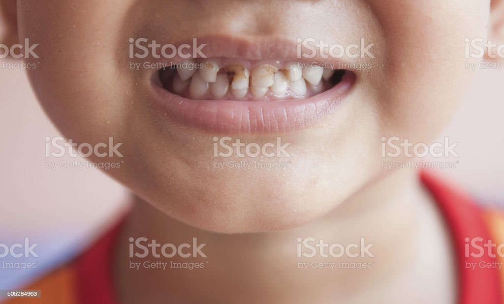 Dental medicine and healthcare stock photo