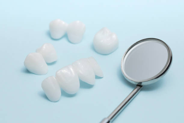 Dental mirror and zircon dentures on a light blue background - Ceramic veneers - lumineers zirconia dentures is used for cosmetic purposes in dental clinics tooth crown stock pictures, royalty-free photos & images