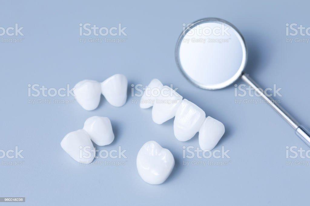 Dental Spiegel und Zirkon Zahnersatz auf einem hellen Hintergrund - Keramik-Veneers - Lumineers blau - Lizenzfrei Ausrüstung und Geräte Stock-Foto